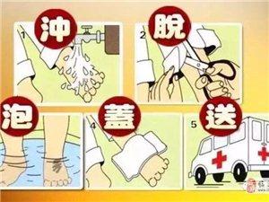 【安全知识】烫伤正确急救