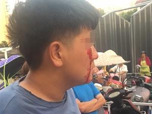潢川西亚附近发生打架斗殴事件,男子满脸血...