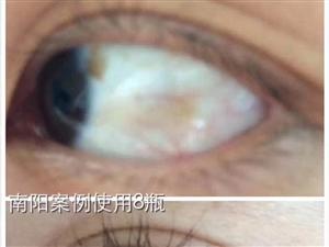 解决眼疾,保护眼睛,选原生态细胞生态护眼水