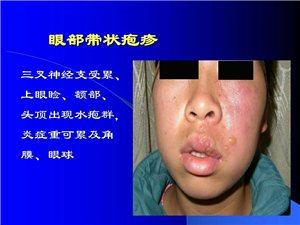 100例��畎�疹,均一到�纱沃斡�,不留神�痛后�z�Y。