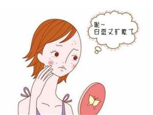�v�R店21�q患者,因使用劣�|化�y品,面部白癜�L�U散