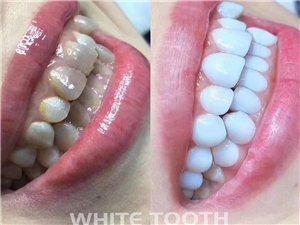 牙�X美白全套技�g+全套工具、材料【整�w出�丁�