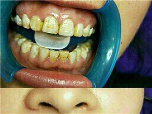 专业牙齿美白、纹绣、美瞳线、小纹身、美睫、美甲等