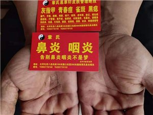不復發告別灰指甲腳氣手癬體癬股癬等