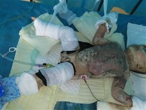 琼海博鳌八个月大的小女孩被开水严重烫伤 呼吁社会爱心人士帮帮她!!