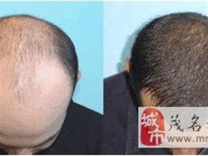 招聘脱发秃顶生发素地区代理商(试用品免费拿)