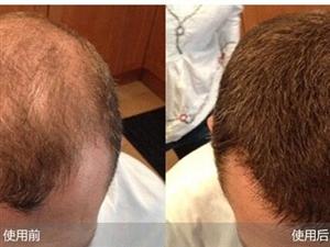 免费赠送脱发秃顶生发素试用品