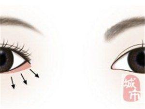 神奇的下眼睑下至术是什么?真的能让眼睛变大吗?