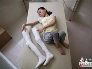 """化州这个女孩终于有了""""大长腿""""站起来了 !"""