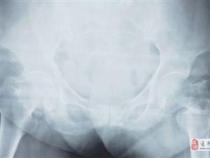 澳门金沙网址站县中医院利用微创手术成功帮助一名百岁老人解除痛苦