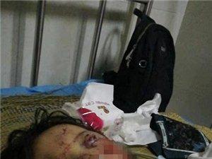 请帮忙救救住在ICU病房的儿子,还处在危险期的侄女