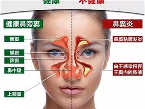 【公益行】鼻炎患者免费筛查,免费大型内窥镜检查!