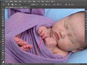 影楼后期数码教程分享:后期数码师如何解决新生宝宝皮肤皮裂的?
