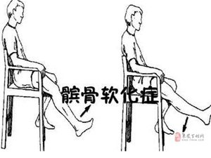 髌骨软化症的康复