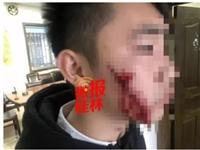 什么情况?情侣在桂林车站拥抱分手,女孩突然掏出刀片划伤男友双脸