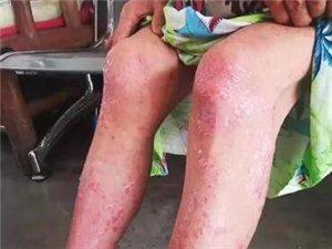 珙县一修鞋妇女患银屑病疼痛难忍想轻生,幸亏遇上了他!