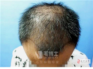 福州哪里做头发加密效果好