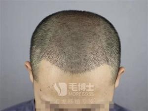 福州头发加密有效果吗