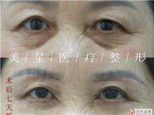 信阳美星祛眼袋手术后如何护理