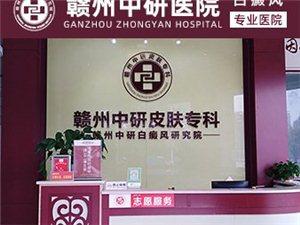 贛州哪里可以治好白癜風 油炸食品白癜風患者可以吃嗎