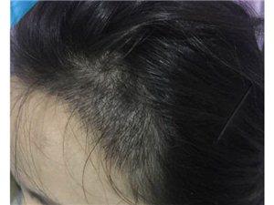 成都种植头发多少钱,种植发际线价格