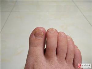 灰指甲去哪治疗