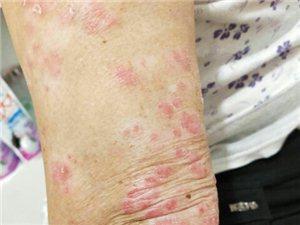 皮膚病、腳氣秘方藥