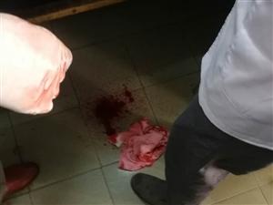 盐城大丰草堰镇供电所姓沈的职工持刀砍伤农名工
