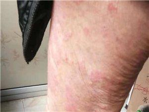 皮膚性病痔瘡專科